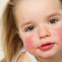 fondo300x300-dermatitisAtopica